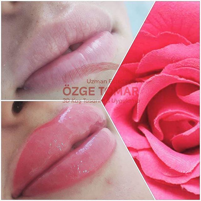 dudak dolgusu ne kadar kalıcı